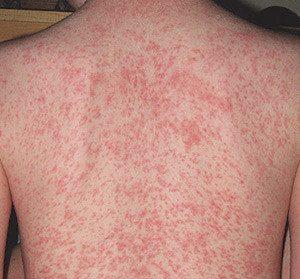 Allergy-Front_photo3-300x279