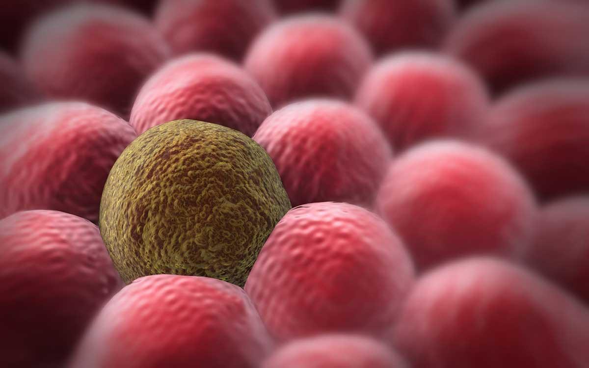 بهترین برنامه رژیم غذایی برای جلوگیری از سرطان چیست؟
